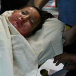 آذربایجان غربی بیمارستان های تخصصی سوختگی و روانی ندارد