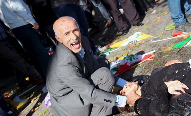 ATTENTION EDITORS - VISUAL COVERAGE OF SCENES OF INJURY OR DEATH A man asks for help after an explosion during a peace march in Ankara, Turkey, October 10, 2015. At least 20 people were killed in explosions on Saturday outside the main train station in the Turkish capital Ankara where people were gathering for a peace march, Dogan news agency reported. A Reuters reporter at the scene saw at least 15 bodies covered by flags, with bloodstains and body parts scattered on the road. REUTERS/Tumay Berkin